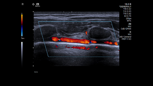 Lung Ultrasound with Color Doppler