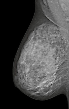 breast-cancer-mammography-032988-edited.jpg