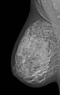 breast-cancer-mammography-032988-edited.jpg