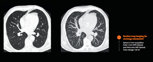 routine oncology-lung