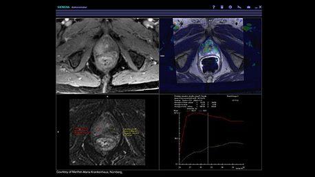siemens_mri_prostate-mri_image_syngo-mr-general-engine