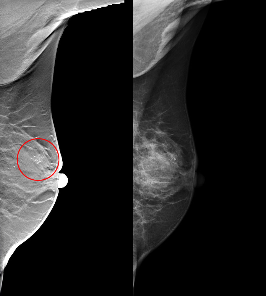 tomosynthesis 3d mammography