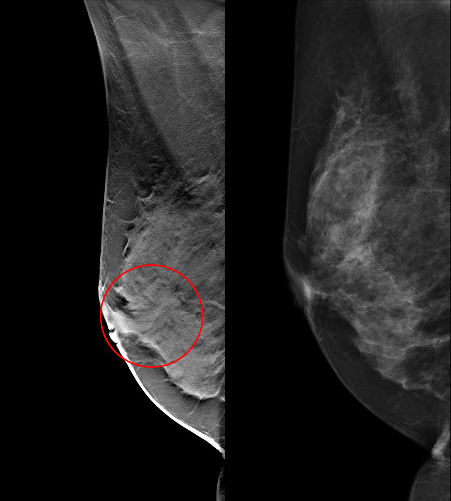 siemens mammography tomosynthesis Systems tested • siemens and hologic: moving focus no grid • ge: step-and- shoot with a grid • other systems available include ims giotto and planmed nuance • philips have a dbt system based on the microdose (different geometry) – not currently sold sechopoulos i 2013 a review of breast tomosynthesis.