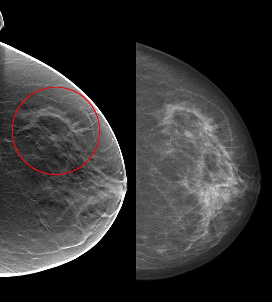 """tomosynthesis images The term """"tomosynthesis"""" merges 'tomography' and 'synthesis' it is a special type of imaging technology that fuses cone-beam ct reconstruction with digital image processing to produce images of specified cross-sections from a single tomography."""