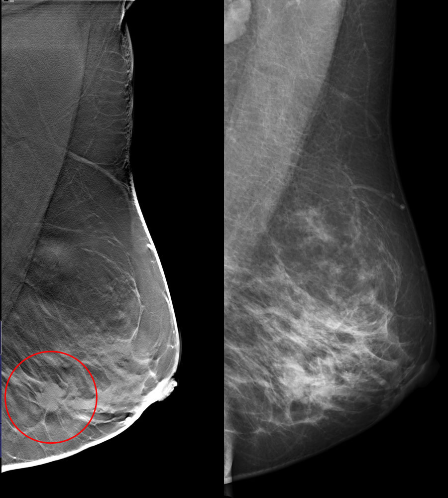 tomosynthesis 3d mammography Digital breast tomosynthesis (also known as 3d mammography) uses x-rays and three-dimensional technology to diagnose breast abnormalities and help physicians treat breast disease.